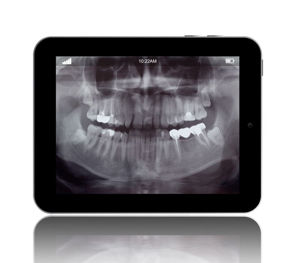 Digital X-rays are offered at Stamford Oral & Maxillofacial Surgical Arts